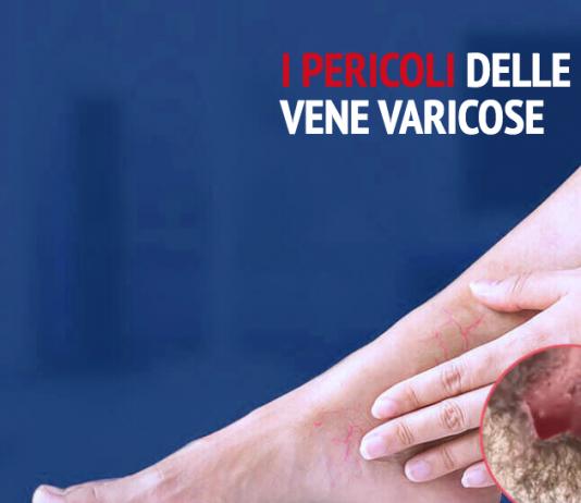 Varilux vene varicose