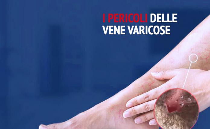 crema capillari gambe forum